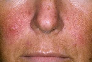 hogyan lehet gyorsan eltávolítani a pikkelysömör az arcon
