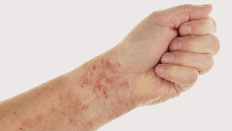 a bőrön lévő foltok hólyagokkal vörösek
