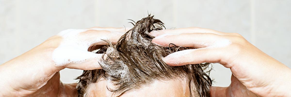 Pikkelysömör a hajas fejbőrön - HáziPatika