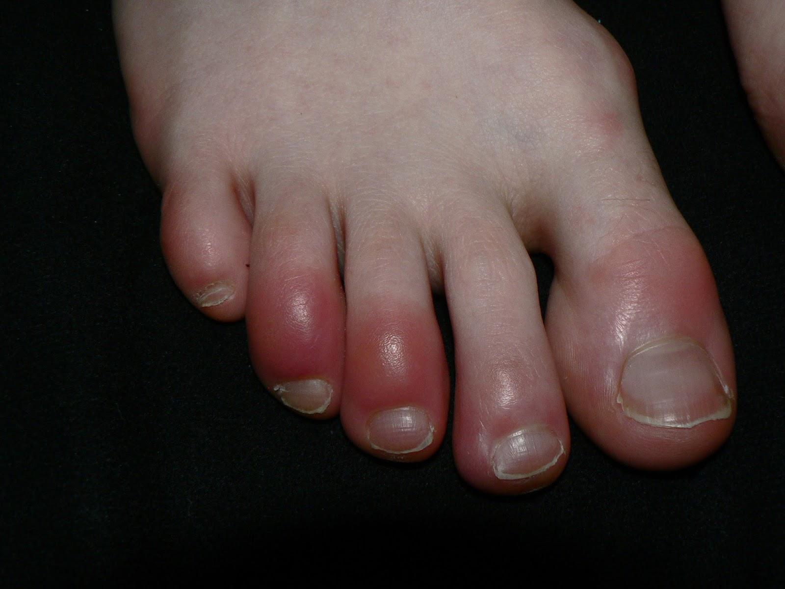 a lábujjak viszketnek és vörös foltok jelennek meg mint kezelni