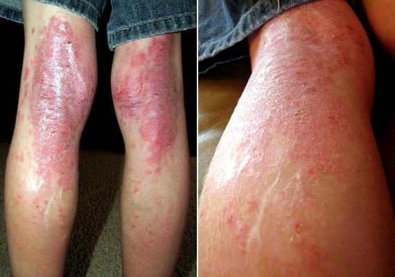 a pikkelysömör hatékony kezelése a lábakon