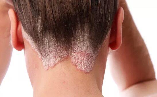 a pikkelysömör súlyosbodása otthoni kezelés képek a pikkelysmr kezelsrl
