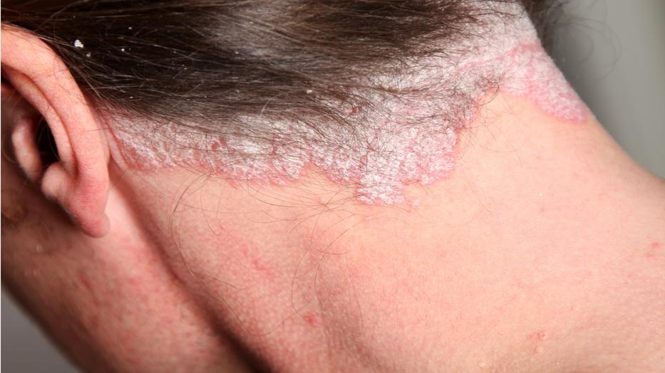 hogyan kell kezelni a fül mögött lévő vörös foltokat)