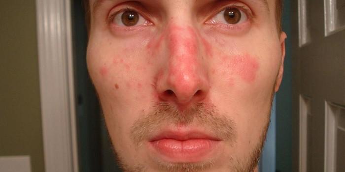 arcát és testét vörös foltok borítják