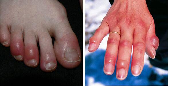 vörös foltok az ujjakon és a lábujjakon viszketnek)