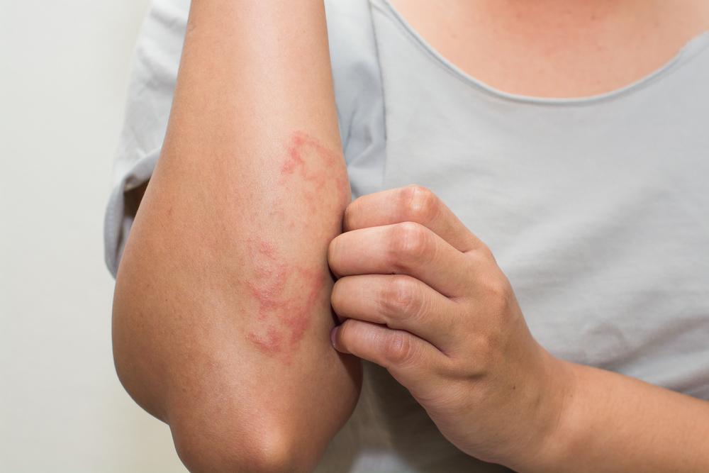 vörös foltokat öntött ki a lábakon milyen iszappal kezelik a pikkelysmr