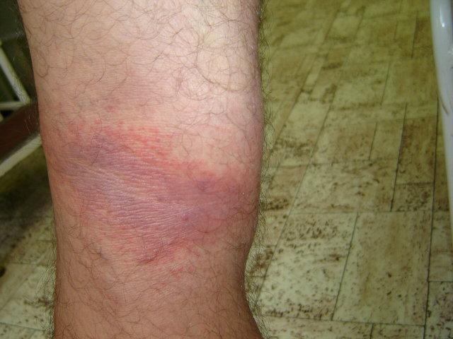 vörös lábakkal rendelkező folt a láb bőrén