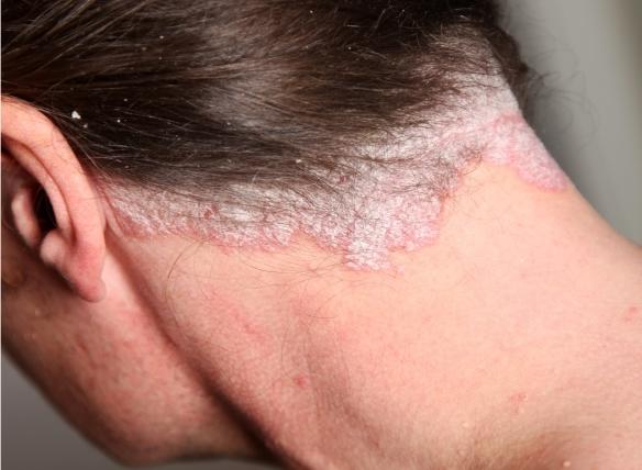 klíma a pikkelysömör kezelésére vörös foltok a bőrön a haj helyén