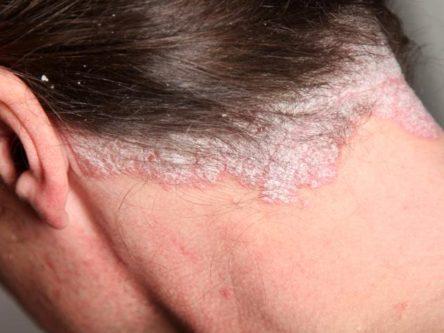 erekció után vörös folt a fején)