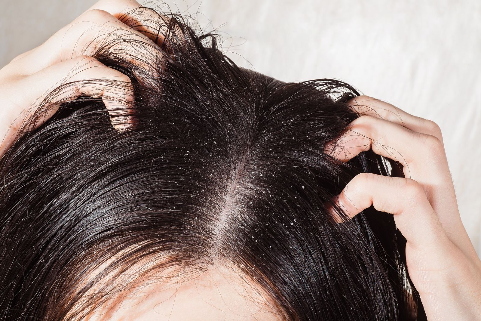 pikkelysömör kezelése hajban)