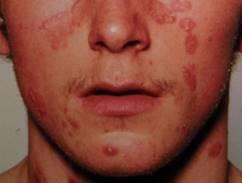 psoriasis flare up symptoms