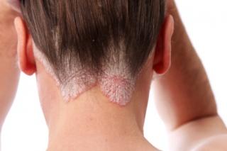 bőrbetegségek a lábakon vörös foltok jelentek meg vörös foltok jelentek meg a mellkas hasán