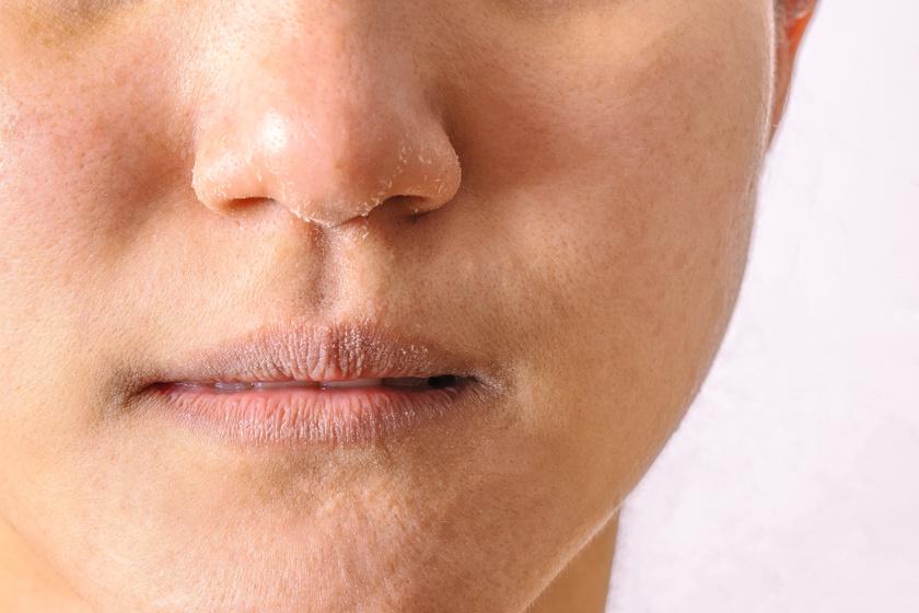 hogyan lehet eltávolítani az orr piros foltjait