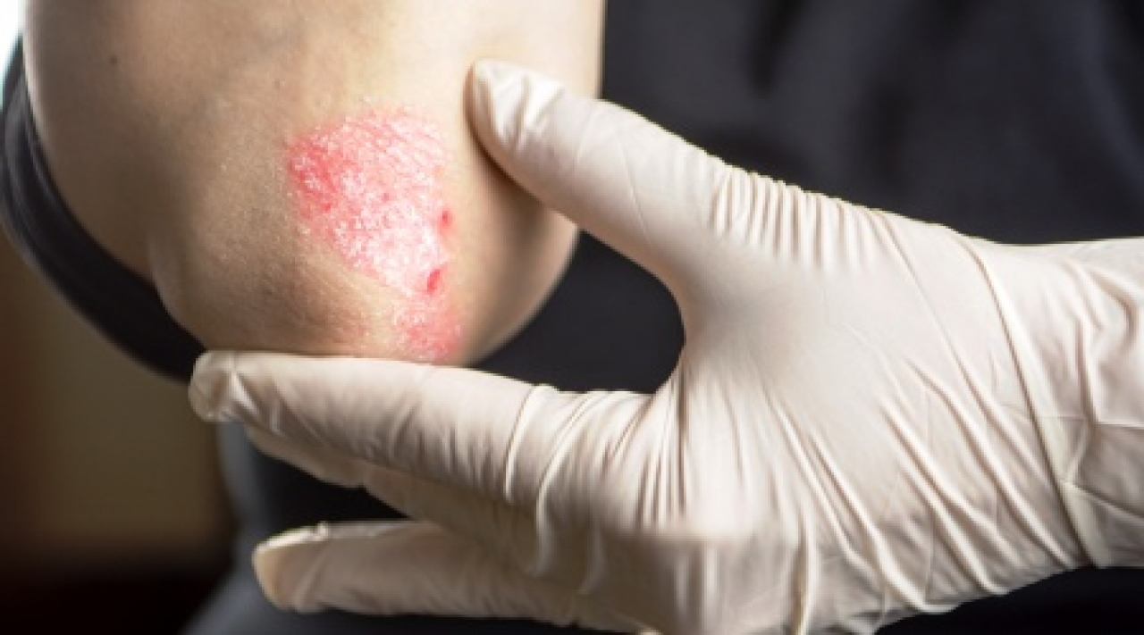 investigation for psoriasis