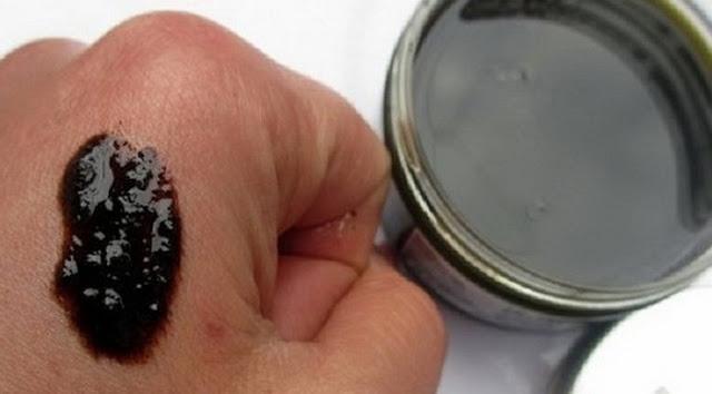 hogyan lehet pikkelysömör kezelésére veselka gomba