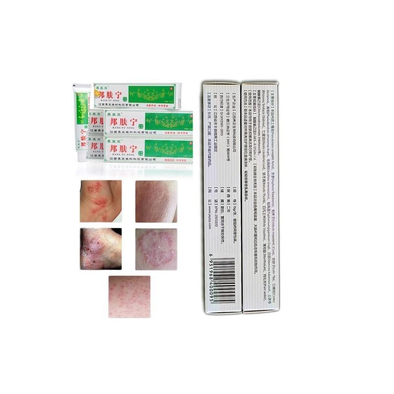 krém vagy kenőcs pikkelysömör dermatitis hogyan kell kezelni a vörös foltot a homlokán