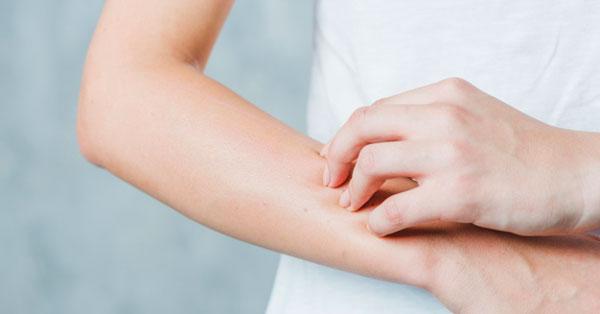 vörös durva folt van a kezén és viszket)