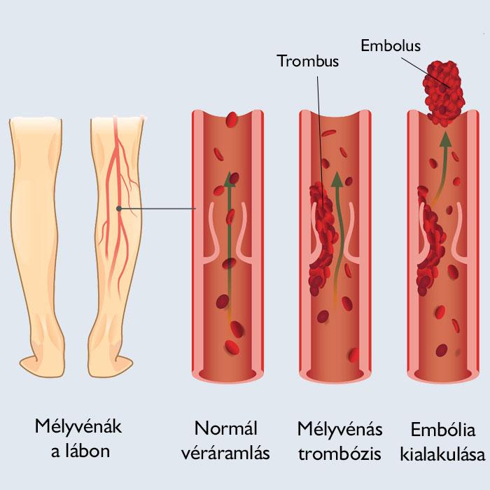 vörös foltok és zúzódások a lábakon