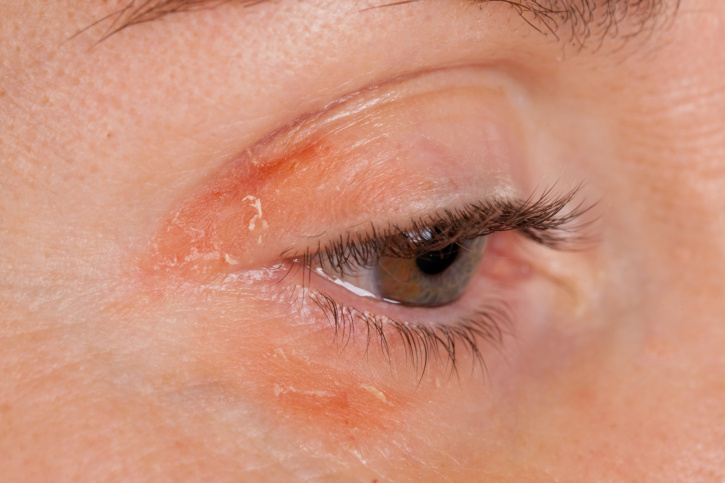 Vörös pikkelyes foltok az arcon és a szemöldökön, Vörös, viszkető foltok jelentek meg a bőrén?